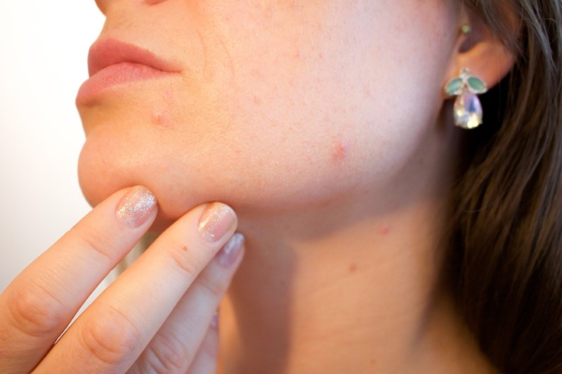 Acne skincare
